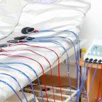 الکتروشوک درمانی