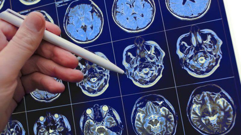عوارض استفاده از حشیش روی مغز